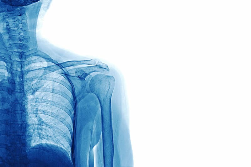 A blue X-Ray of a neck and shoulder on white background